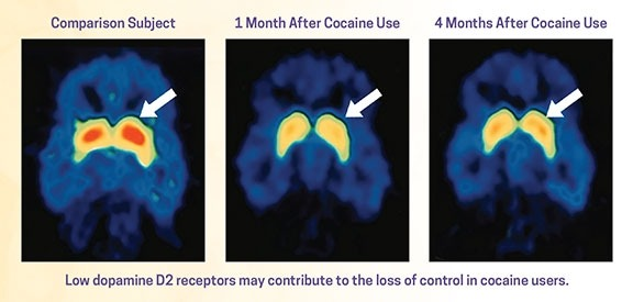 A picture of a brain scan showing low dopamine D2 receptors during cocaine use, the same brain 1 month after cocaine use with partial recovery, and the same brain 4 months after cocaine use showing additional recovery.